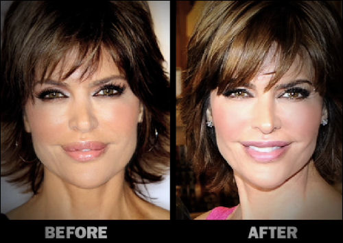 Lisa Rinna before and after lip reduction (image hosted by fushionmag.com)